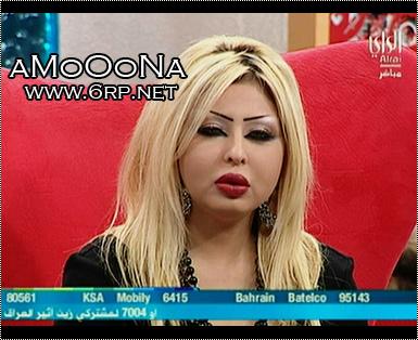 صور شيماء علي قبل وبعد عمليات التجميل