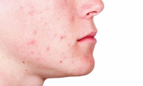 أكثر المشاكل الجلدية الشائعة الناتجة عن الترتر